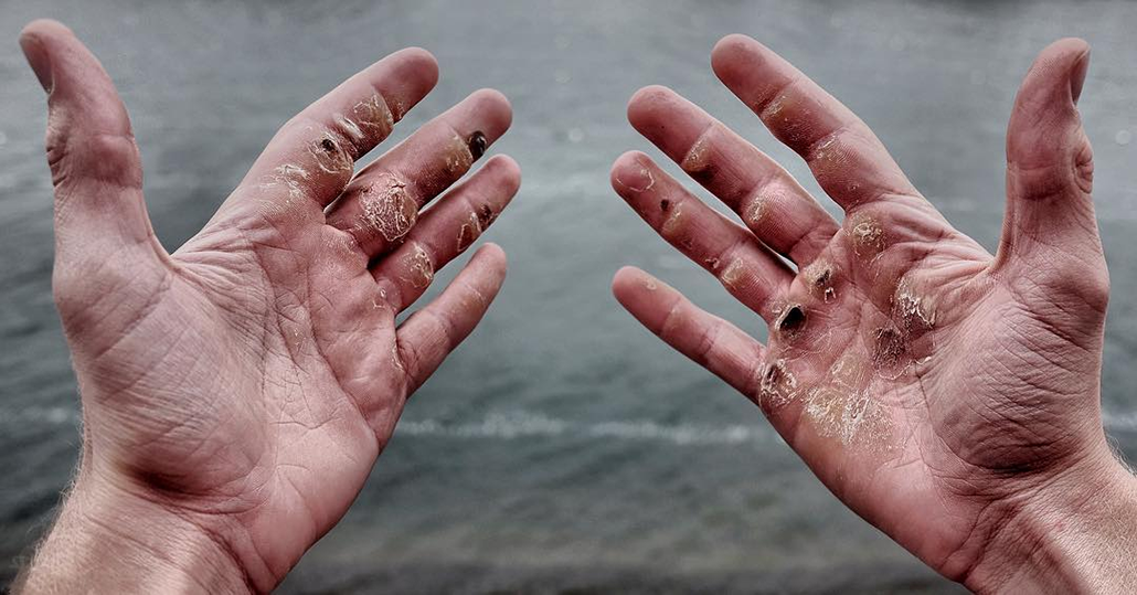 Calluses On Hands