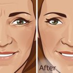 Reduce Wrinkles tips tricks