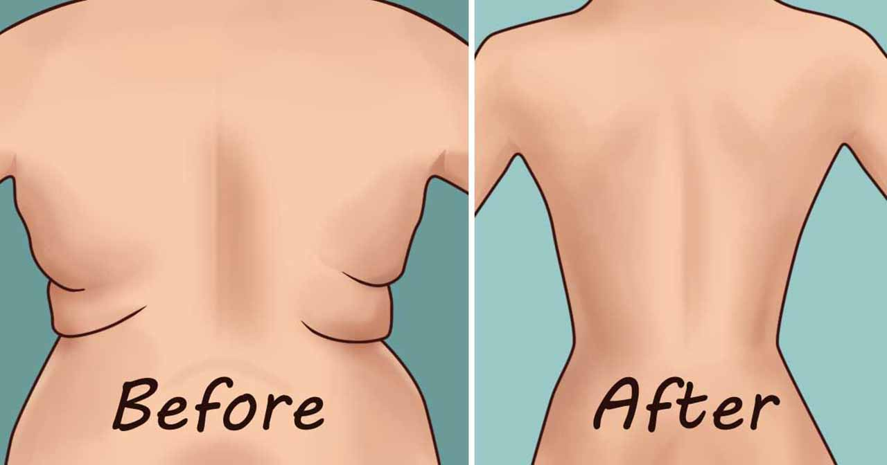 Back Fat for Woman