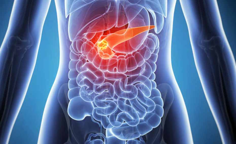 Pancreatic cancer therapy