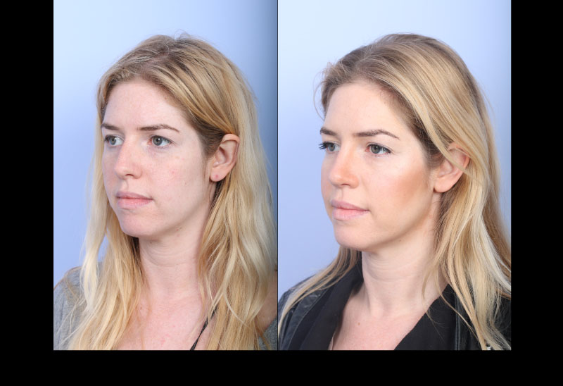 Reasons why Rhinoplasty is so common