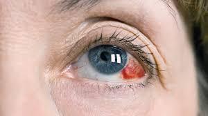 burst blood vessel in eye