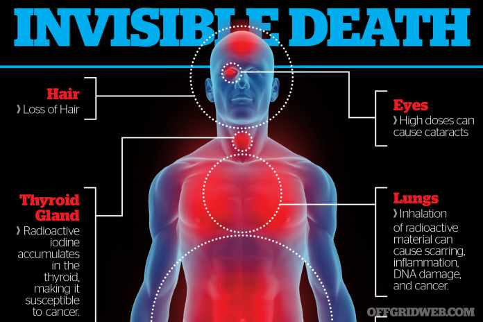 symptoms of radiation poisoning