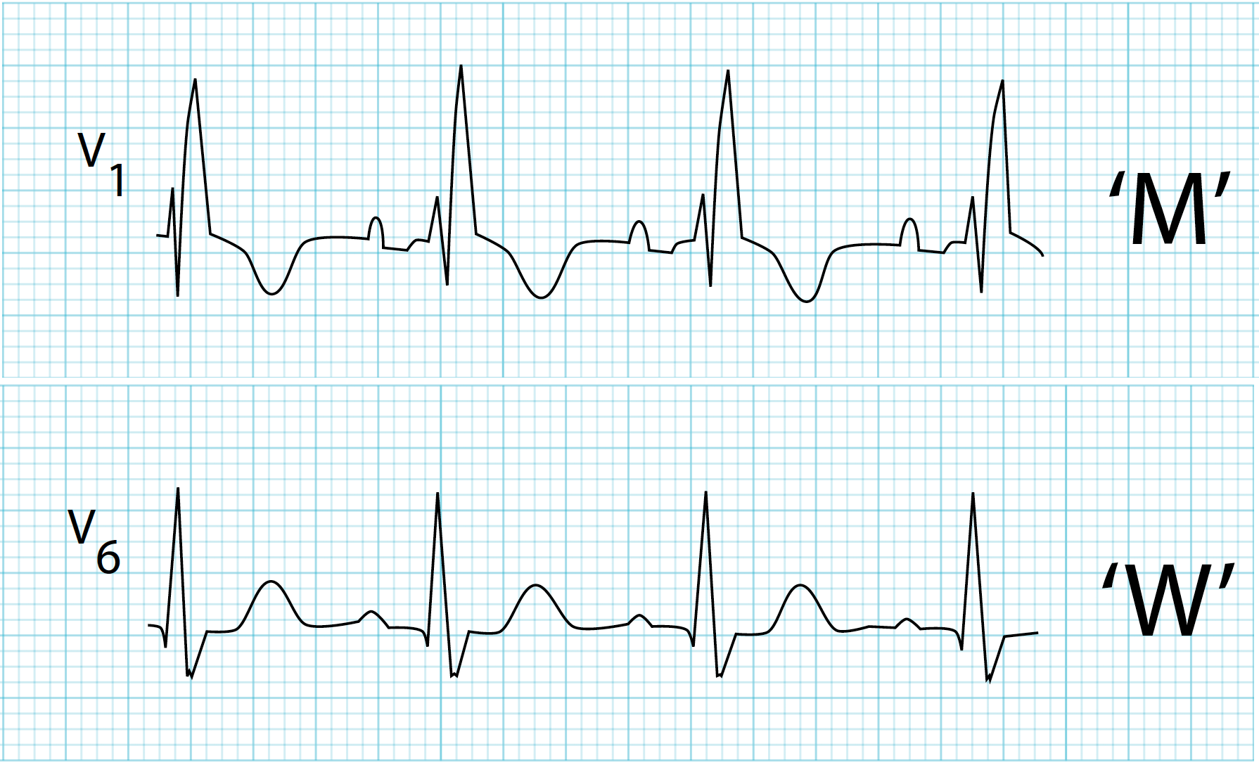 Incomplete Right Bundle Branch Block